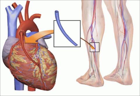 Шунт позволяет создать альтернативный путь кровообращения