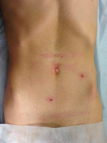 Следы от эндоскопической операции по устранению рецидива варикоцеле