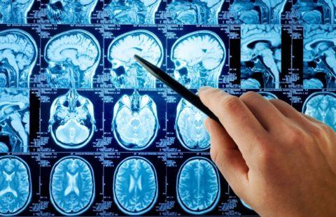 Сосудистая деменция проявляется на МРТ участками атрофии коры мозга (на фото)