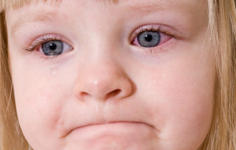У детей капилляры в глазах могут лопаться после длительного плача