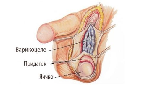 Схематическое изображение заболевания