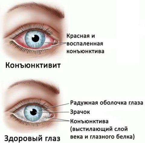 Воспалительные заболевания глаз приводят к разрывам капилляров