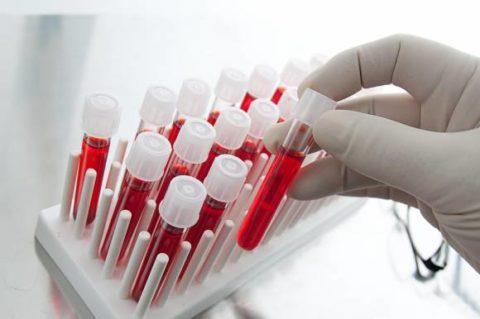 Лабораторные тесты это необходимая составляющая диагностики.