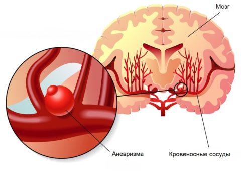 Сосудистая патология чаще возникает в месте разветвления артерий