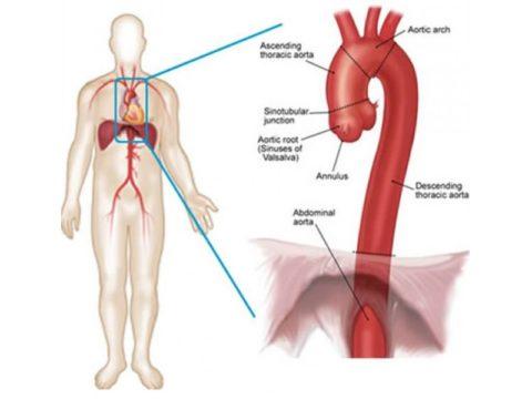 Аорта – крупнейший сосуд в организме
