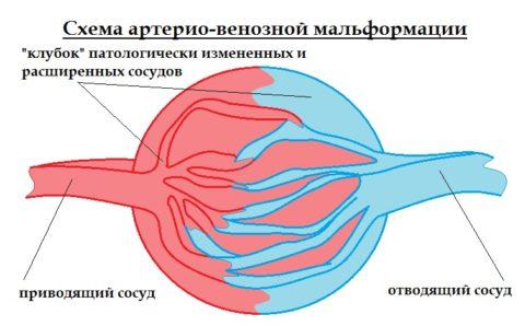 Артериовенозная мальформация часто диагностируется у новорожденных и грудничков