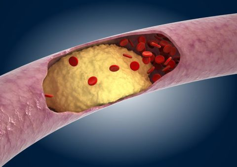 Атеросклеротическая бляшка в кровеносном сосуде