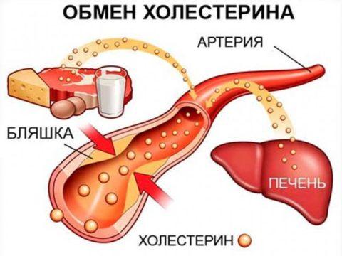 Атеросклероз (холестериновые бляшки) – частая причина повреждения ССС