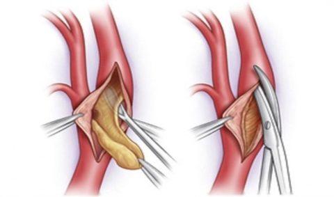 Суть методики тромбэктомии