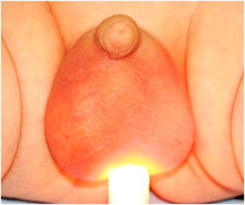Гидроцеле (водянка яичка) – распространённое осложнение