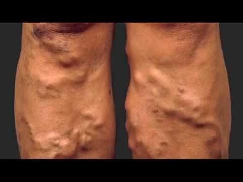 Бугристые шишки могут свидетельствовать о развитии тромбофлебита поверхностных вен.
