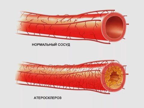 Часто от такой проблемы страдают пациенты с атеросклерозом