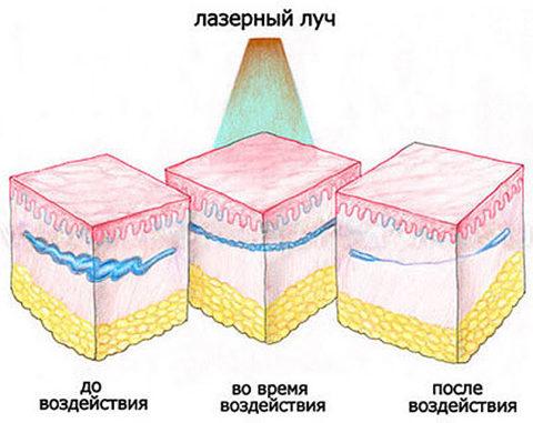 Действие лазерного луча на сосуды