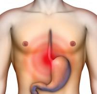 Диареи и запоры провоцируют появление варикоза в мошонке.