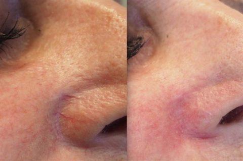Фото до и после операции, и никакой телеангиоэктазии