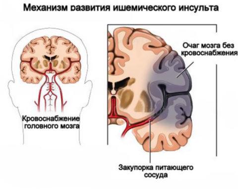На фото - схематическое изображения патогенеза заболевания