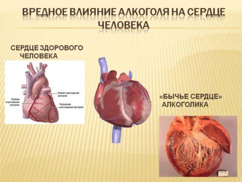 Фото сердца алкоголика