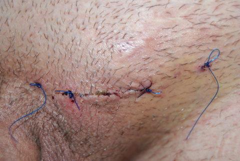 Фото шва после операции