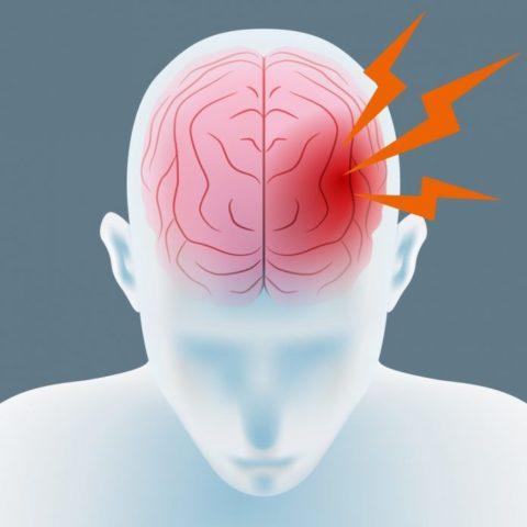 Геморрагический тип заболевания часто манифестирует острой мозговой катастрофой