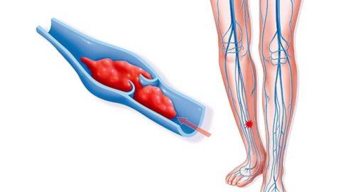 Главный фактор формирования кровяного сгустка при тромбофлебите - воспаление