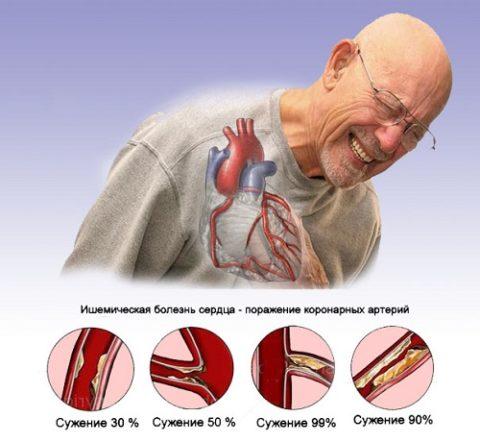 Ишемическая болезнь сердца – характер поражений.