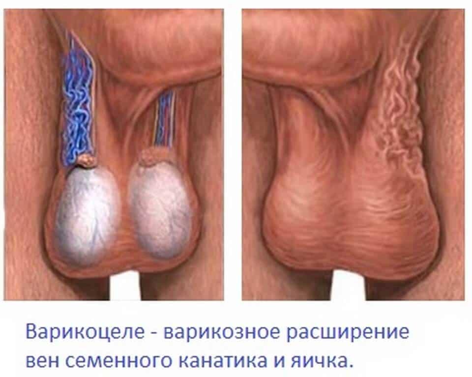 Болит правое яичко причины как лечить