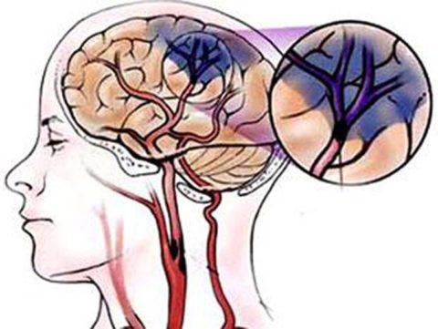 Как выглядит ишемический инсульт