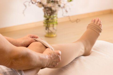 Компрессионное белье как метод профилактики тромбофлебита после родов.