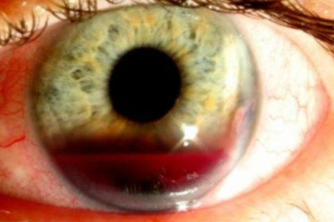 Кровоизлияние в переднюю камера глаза
