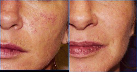 Лазерное удаление купероза – фото до и после.