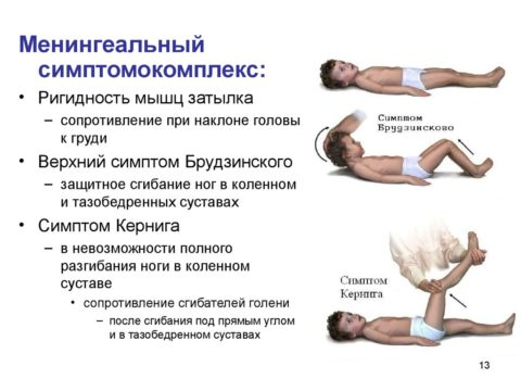 Менингеальные симптомы при субарахноидальном кровоизлиянии сильноположительны