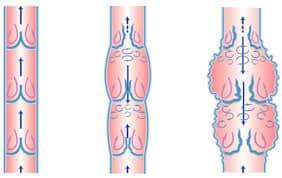 На схеме показан рефлюкс – обратный ток крови из-за неправильной работы клапанов