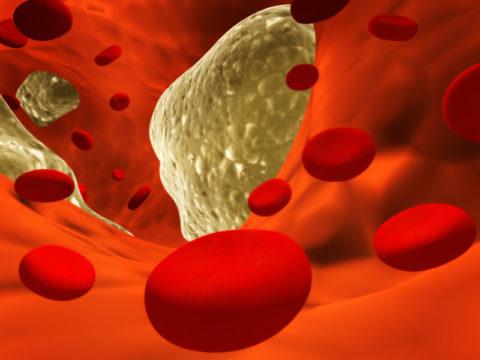 Наибольшее влияние фибраты имеют на уровень триглицеридов в крови