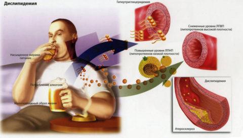 Неправильное питание способствует появлению бляшек
