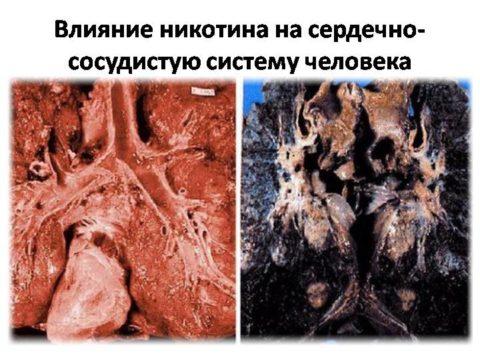 Никотин убивает сердце
