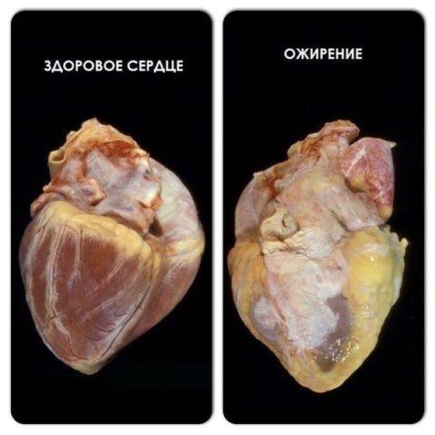 Ожирение сердца – одна из причин не становиться пивным алкоголиком.