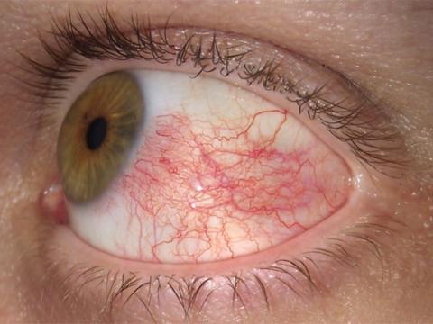 Полопавшиеся капилляры в глазах