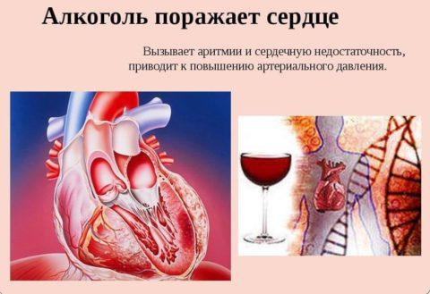 Поражение сердца алкоголем