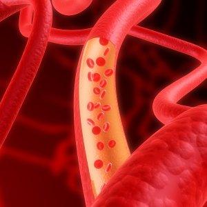 Повреждение эндотелия сосуда