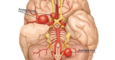 Отмечается нарушение трехслойного строения стенок артерий и вен