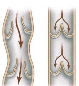 При не смыкании венозных клапанов возникает рефлюкс.