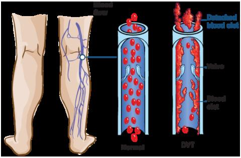 При тромбозе сгусток крови может закупорить просвет вены