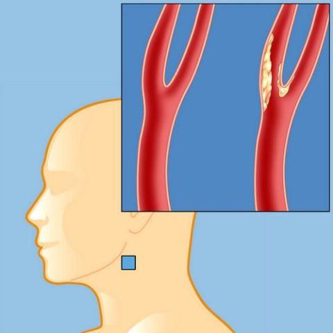 Пример артерии, которая нуждается в чистке