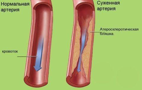 Пример того, как сужается просвет артерии при наличии бляшек