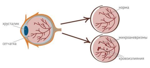 Пример здоровой и патологической сетчатки