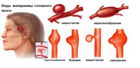 Разные виды аневризм