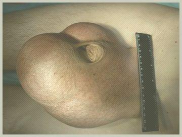 Рецидив варикоцеле