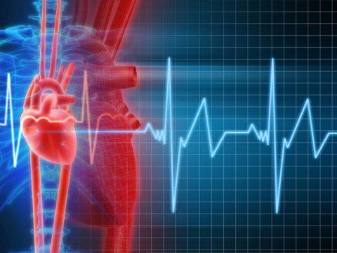 Сбой сердечного ритма визуализируется на ЭКГ.