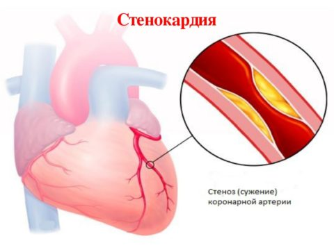Сердце нуждается в постоянном поступлении большого количества кислорода