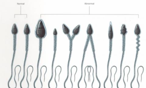 Схема: нормальные и дефектные сперматозоиды